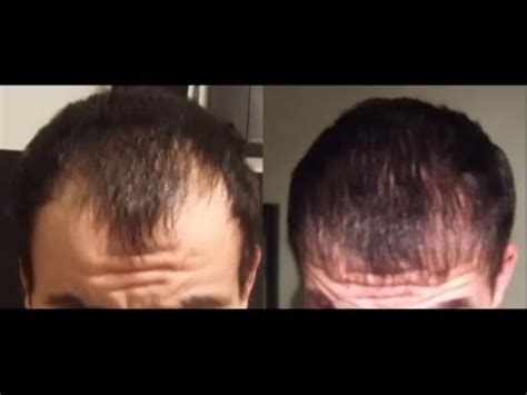 Results of using Minoxidil 5% before and after - YouTube