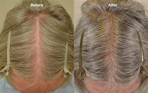 Topical Minoxidil (Females) Before & After Photos - Hair